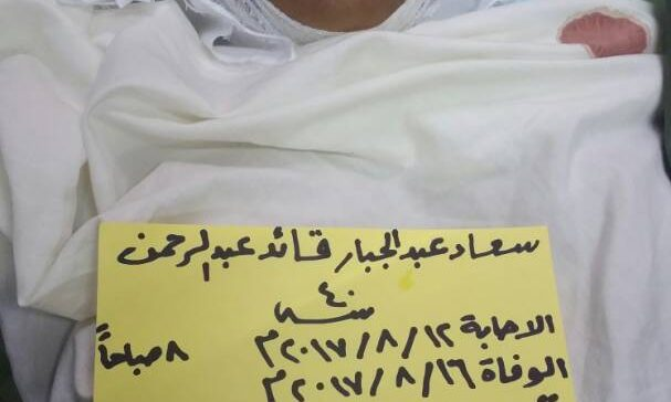 Woman dies from injuries sustained by militia snipers in Taiz