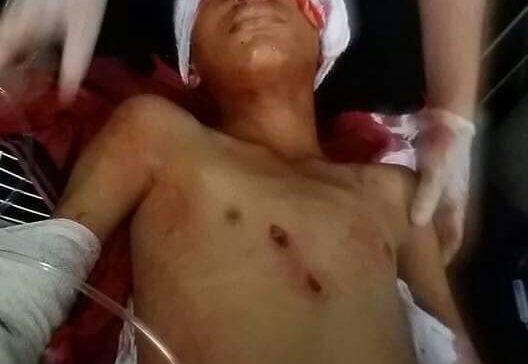 Houthi sniper shots dead young civilian in Taiz