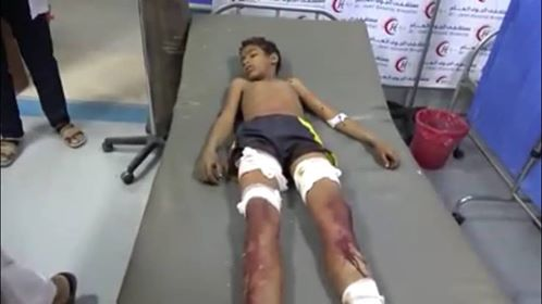 One child killed and his brother wounded by Houthi blast in Hodiedah