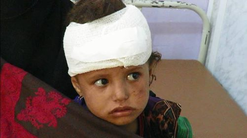 Houthi rocket amputates little child in Taiz