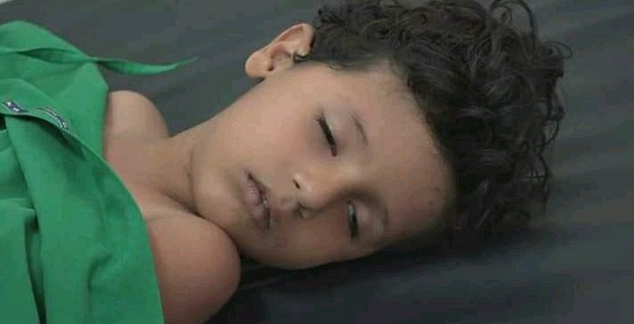 A child killed & 3 others wounded by militia's artillery shelling in Taiz