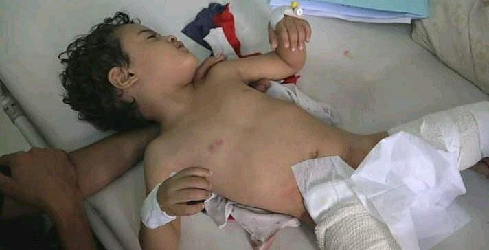 5 children injured by Houthi militia shelling in Taiz