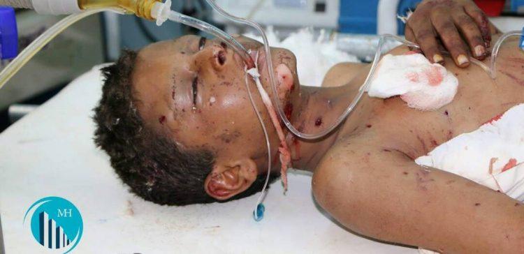 Militia's landmine killed and injured four children in Marib