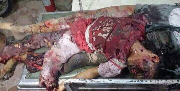 Yemen's Internationally-Backed Government Accuses Putschists of Civilian Massacre in Taiz