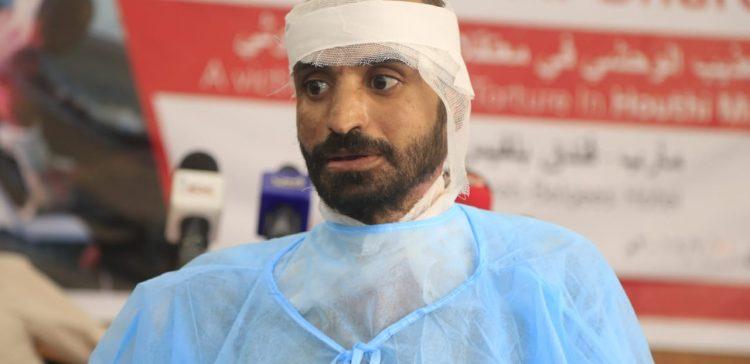 Doctors unveil severity of torture Al-Mashriqi went through in Houthi jail
