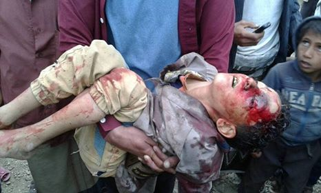 Houthi militia kills school child, injures another in Taiz