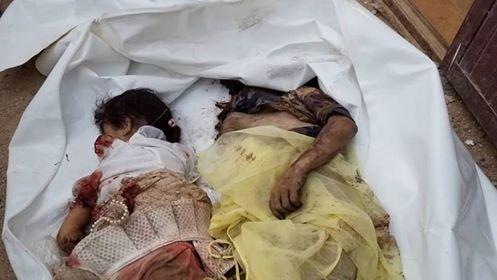 Houthis kill child, injure dozen civilians in Hodeida