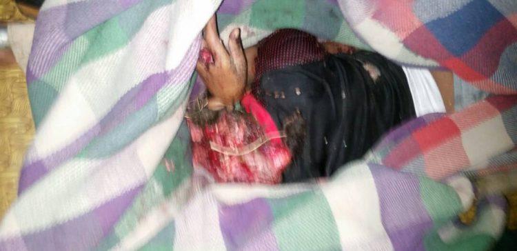 2897 women killed, injured by Houthi militias in four years in Taiz, HRITC says