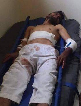 Civilian shot by Houthi militia sniper in Taiz