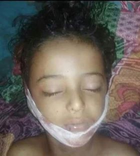 A citizen, his wife, two children killed by Houthi mine explosion in Hodeidah